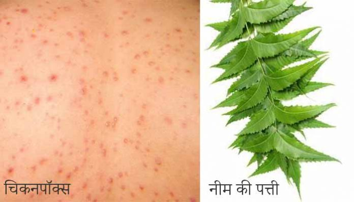 Chickenpox in Hindi